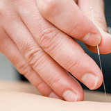 Picture of accupuncture