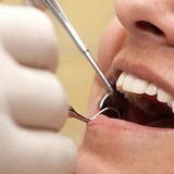 Picture of dental treatment